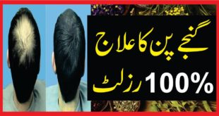 ganja pan Hair Fall Solution and Hair Growing Tips in Urdu