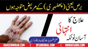 Leucoderma ( Vitiligo ) ( phulbehri ) Treatment In Urdu By Hakeem imran Kamboh (2)
