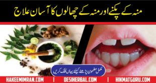 Moun Aur Zaban Ky Chale Ka ilaj Mouth And Tongue Blisters Cure (2)