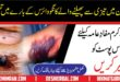 What is The Congo Virus and How Can it Affect You In Pakistan