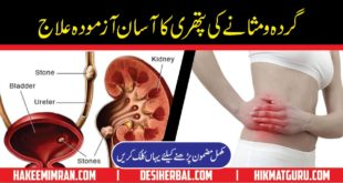 Gurday ki Pathri Desi Totkay in Urdu for Kidney Stone