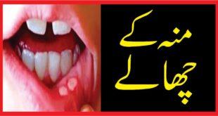 منہ کے چھالے