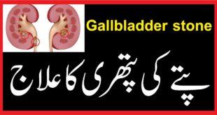 Gallbladder stone پتے کی پتھری کا علاج