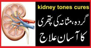 kidney stones cureگردہ، مثانہ کی پتھری کا آسان علاج