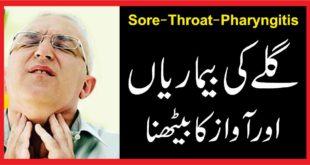 Sore-Throat-Pharyngitisگلے کی بیماریاں اور آواز کا بیٹھنا