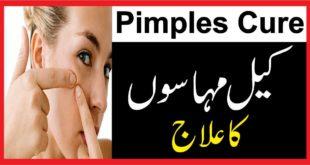 Pimples cure:کیل مہاسوں کا علاج