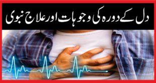 Heart attack:دل کےدورہ کی وجوہات اور علاج نبوی