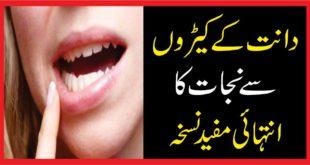 دانت کے کیڑوں سے نجات کا انتہائی مفید نسخہ
