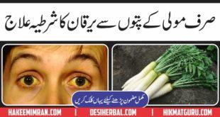 Yarkan Jaundice Treatment in Urdu