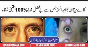Hepatitis C Treatments(Kala YarqanKa Elaj) in Urdu