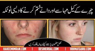 Keel Mahasay aur Daane (Acne and pimples) Kay Elaj Kay Totkay