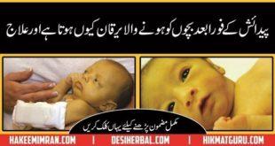 Nozaida Bachoon Ka Yarkan (Newborn Baby Jaundice Treatment)in urdu