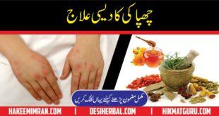 Chapaki Ka Elaj Urticaria Symptoms Causes Treatment