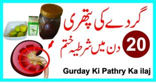 Kidney Stones Ka ilaj|| Gurde Ki Pathri|| Gurde Me Pathri||Kidney Stones Cure in Urdu