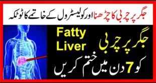 Fatty Liver Ka Desi ilaj|Fatty Liver Treatment in Urdu/Hindi|Fatty Liver And Poor Sex